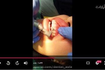 کامپوزیت ونیر دندان در اصفهان