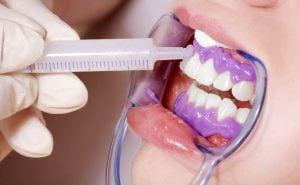 بهترین دندانپزشک در اصفهان ، ایمپلنت دندان در اصفهان ، کامپوزیت دندان در اصفهان ، لمینت دندان در اصفهان
