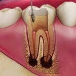 درمان ریشه ، بهترین دندانپزشک در اصفهان ، ایمپلنت دندان در اصفهان ، کامپوزیت دندان در اصفهان ، لمینت دندان در اصفهان