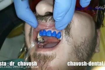 مراحل چسباندن لمینت دندان در اصفهان