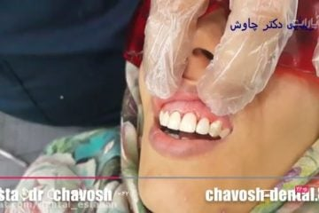 حذف پوسیدگی دندان و بازسازی تاج دندان با کامپوزیت ونیر در اصفهان