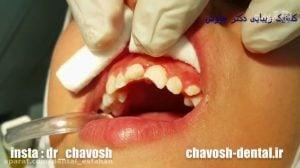 ترمیم دندان شکسته با استفاده از کامپوزیت ونیر در اصفهان