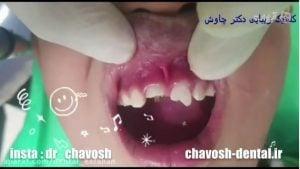 ترمیم دندان شکسته با استفاده از کامپوزیت ونیر دندان در اصفهان
