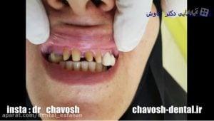 نحوه چسباندن روکش دندان در اصفهان