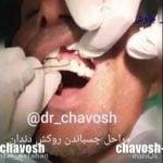 مراحل چسباندن روکش دندان در اصفهان