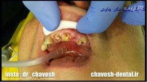 بازسازی دندان با تاج مصنوعی یا پست ریختگی - کلینیک زیبایی دندان چاوش در اصفهان