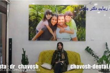انتخاب بهترین دندانپزشک در اصفهان برای کامپوزیت ونیر دندان در اصفهان