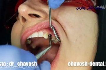 کاشت ایمپلنت دندان در اصفهان و چسباندن روکش ایمپلنت