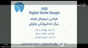 اصلاح طرح لبخند به روش DSD - دندانپزشکی زیبایی دندان چاوش در اصفهان
