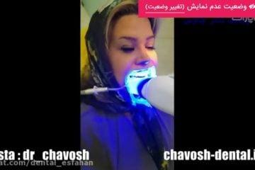 آفیس بلیچینگ -بلیچینگ و سفید کردن دندان در اصفهان