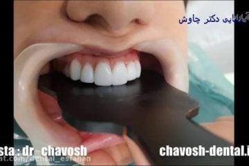 رضایت وپیشنهاد بیمار ساکن کره جنوبی از کامپوزیت ونیر دندان در اصفهان
