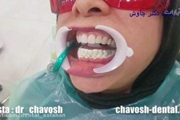 بلیچینگ دندان های فک پایین در اصفهان برای همرنگ شدن با رنگ کامپوزیت فک بالا