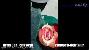 بلیچینگ دندان در اصفهان