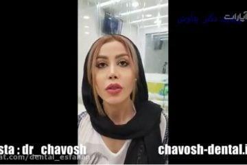 کامپوزیت دندان در اصفهان - کلینیک زیبایی دندان چاوش در اصفهان