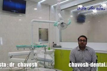 کامپوزیت دندان چیست - کامپوزیت دندان در اصفهان