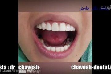 کلینیک دندانپزشکی زیبایی چاوش در اصفهان ، لمینت ، کاموزیت ، ایمپلنت ، بلیچینگ