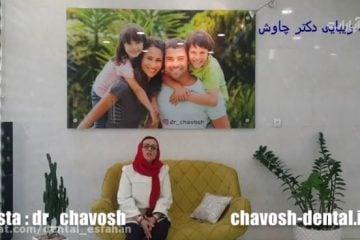 رضایت بیمار از ایمپلنت دندان در اصفهان - لمینت دندان در اصفهان