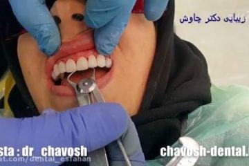 پالیش اولیه کامپوزیت ونیر دندان - کامپوزیت ونیر دندان در اصفهان
