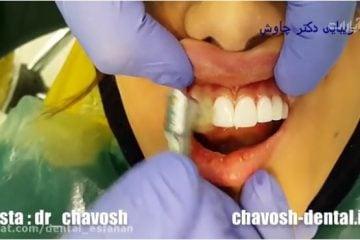 پالیش نهایی کامپوزیت ونیر دندان در اصفهان