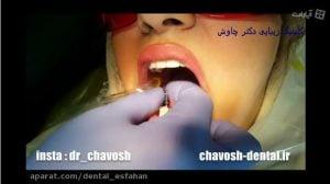 قالب گیری ایمپلنت دندان در اصفهان