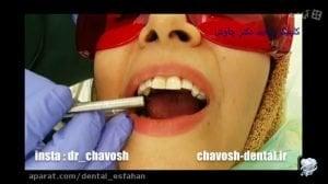 ترمیم دندانی که دچار تحلیل ریشه شده- کلینیک دندانپزشکی زیبایی چاوش