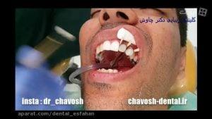 مراحل انجام 8 واحد کامپوزیت ونیر دندان در اصفهان