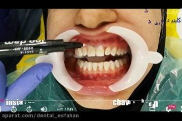 آفیس بلیچینگ مطب دندان در اصفهان - سفید کردن دندان در مطب اصفهان