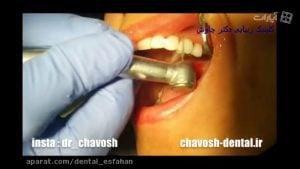 تعویض کامپوزیت قدیمی دندان با کامپوزیت جدید - کامپوزیت دندان در اصفهان