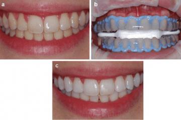 سفید کزدن دندان در اصفهان