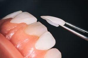 مراحل لمینت دندان در اصفهان