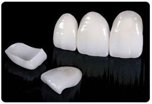 قیمت لمینت دندان اصفهان