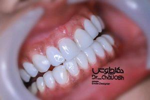کامپوزیت دندان در اصفهان